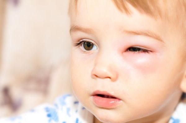 укус ребёнка