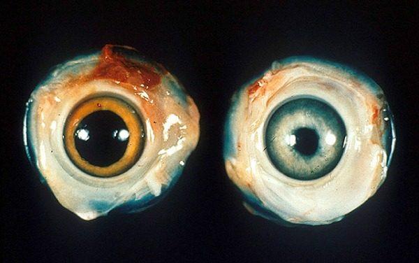 Глаза больно птицы