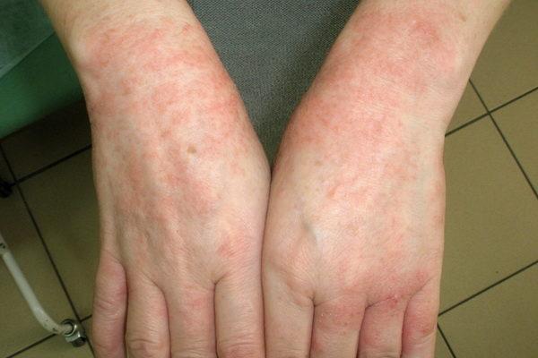 Проявление аллергии на виноград